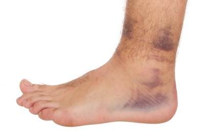 damage to feet,legs and nerves due to diabetes